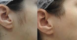 Лазерная эпиляция ушей